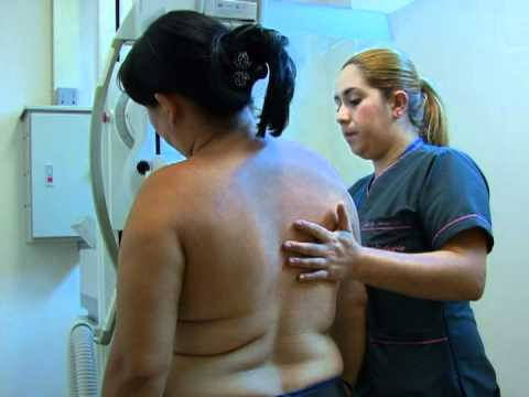 Notisalud Mamografia y cancer de mama.mpg