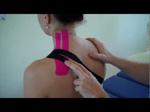 How to treat Neck pain - Levator Scapulae / Upper Trapezius Strain using Kinesiology Tape