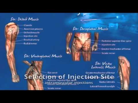 Intramuscular Testosterone Injection Techniques - YouTube