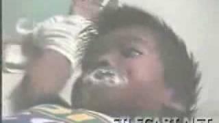 CRIANÇA COM RAIVA VIDEO OFICIAL HIDROFOBIA LEIAM A