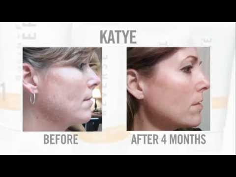 Rodan and Fields Products Before and Afters