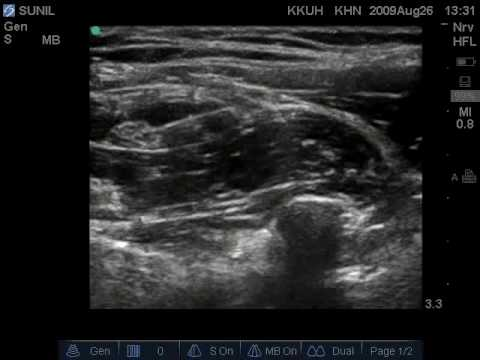 femoral nerve block ultrasound related keywords & suggestions, Muscles