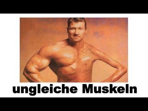 Ungleich große Muskeln - Was kann man tun? Unterschiedlich