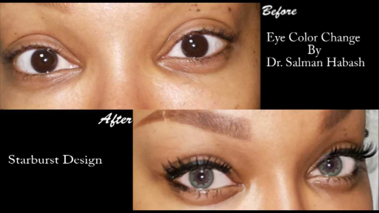 Cosmetic Surgery To Change Your Eye Color Forever Brightocular
