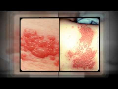 Relaxation Is Important To Prevent Shingles Rash