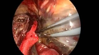 Bir Beyin Tümörü Ameliyatı