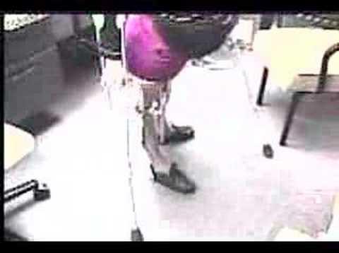 Women Polio Leg Braces