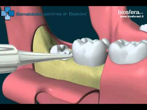 Extraction of wisdom tooth