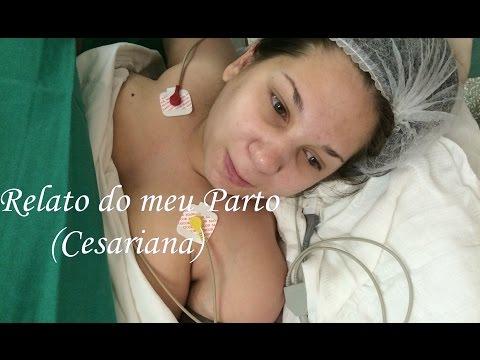 Relato do meu Parto (Cesariana)