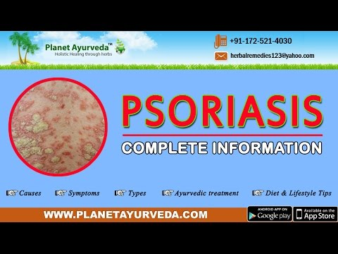 Psoriasis - Causes, Symptoms, Types, Ayurvedic treatment, Diet & Lifestyle