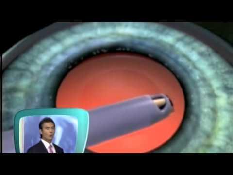 katarakt ameliyati animasyon anlatim Dr.Efekan Coskunseven