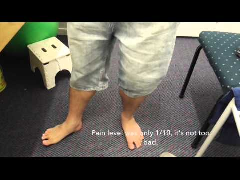 Knee Injury Treatment: Navel Acupuncture to treat knee injury, Hamilton, New Zealand