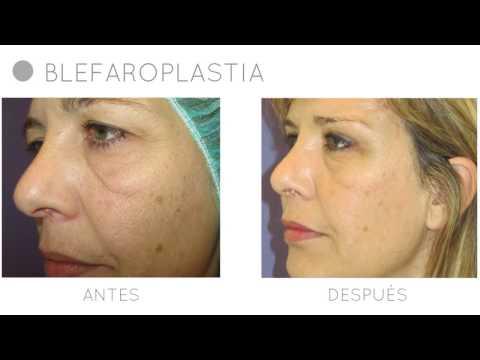 Blefaroplastia | Eliminar las Bolsas de los Ojos