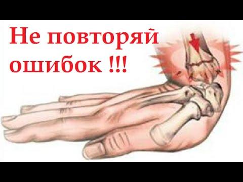 Остеоартроз лечение фаланговых суставов