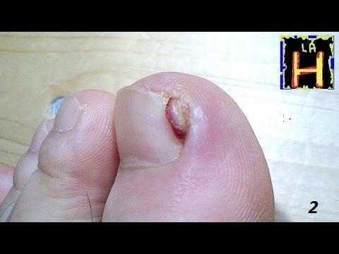 Uñas encarnadas. Prevenir solucionar tratar uñas encarnadas. onicocriptosis.