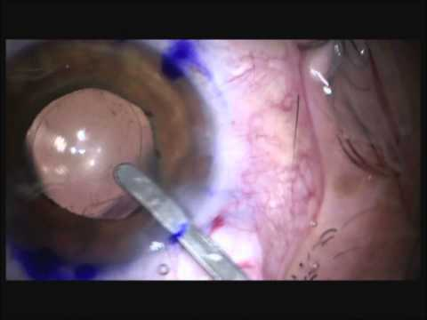 Reviol BB Toric Implantation