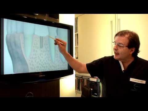 Sorriso Perfeito: Implante - Como é a cirurgia? - Por Dr.Torezan