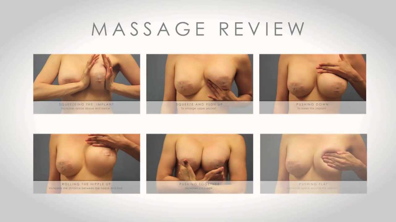 Breast implant massage video