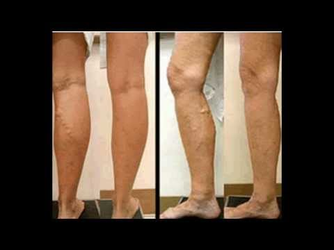 Get Rid Varicose Veins Naturally Review