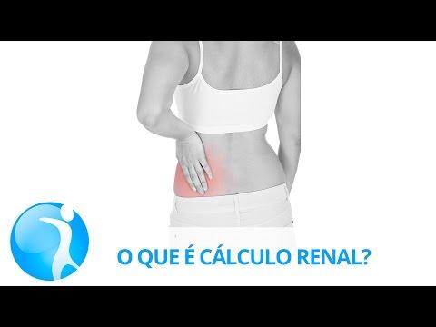 Cálculo renal: beber pouca água facilita pedras nos rins