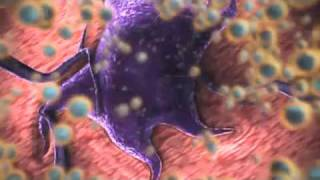 nanomedicine: nanotechnology for cancer treatment