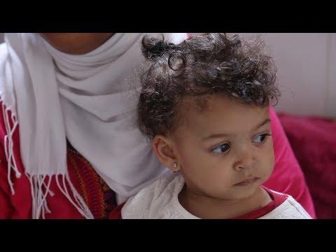 حالة نادرة: أسرة مغربية تنجب طفلة قلبها في اليمين