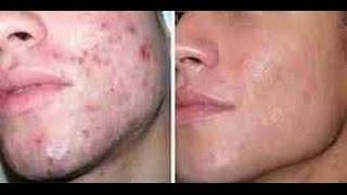 Remedios naturales para eliminar el acné