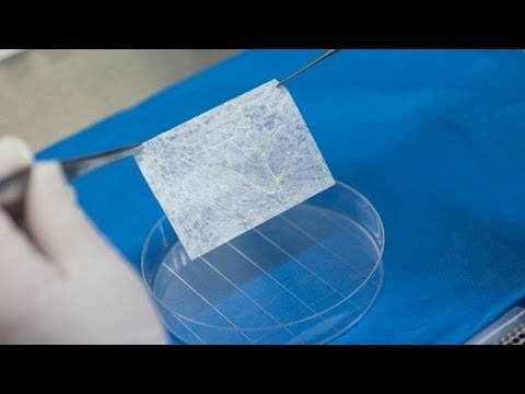 Lab Grown Vaginas Transplanted Into Women