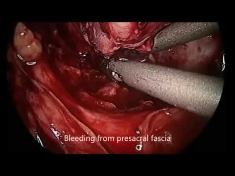Laparoscopic Resection of Retrorectal Neural Tumour