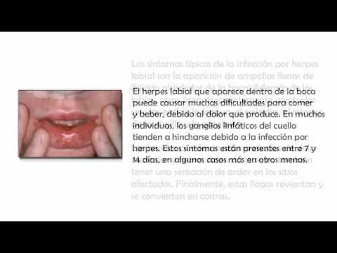 Herpes Labial Sintomas