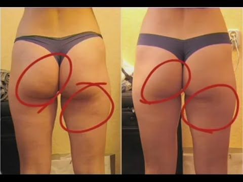 Cellulite Treatment - Watch This Review On The Best Cellulite Treatment You Can Find