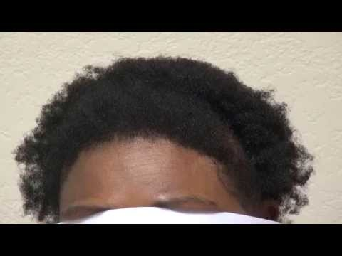 Advance Hair Loss Black African American Women Hair Transplant Surgery Dr. Diep www.mhtaclinic.com