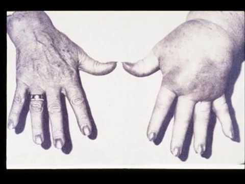 Lymphatic Filariasis (AKA Elephantitis) - YouTube