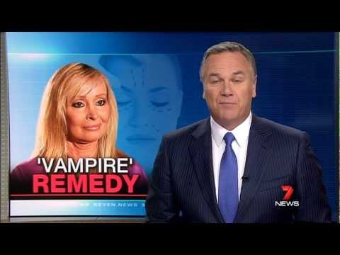 Video - Vampire Face-lift - platelet rich plasma