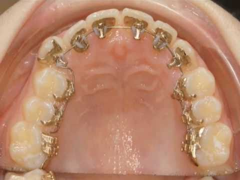 When Your Baby Is Born With Teeth: Natal Teeth | Oral Answers