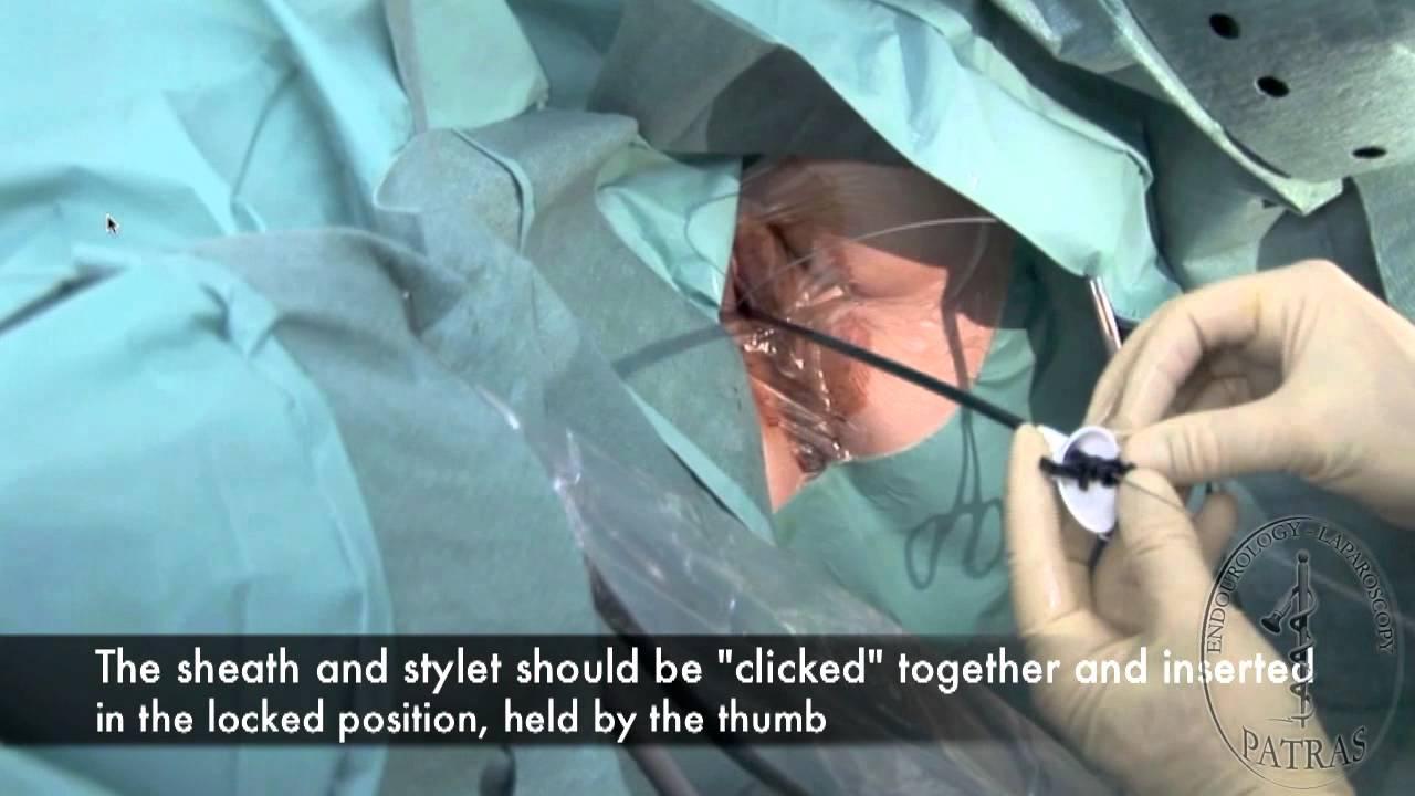 Rigid Flexible Ureteroscopy Insertion Of A Semi Rigid