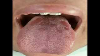 STD Symptoms - YouTube