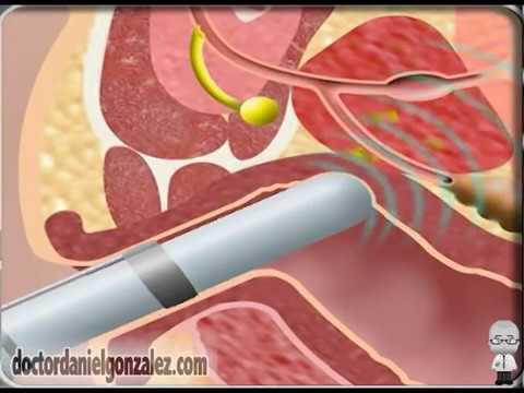 ¿Cómo se hace una Biopsia de Próstata?