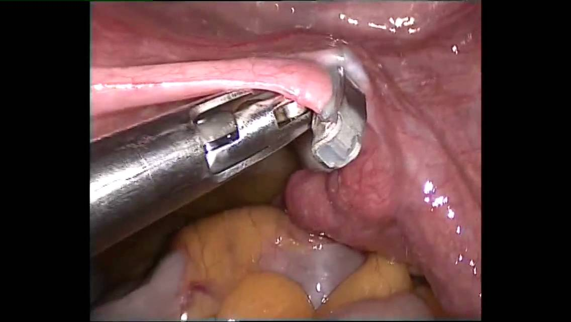 Laparoscopic Tubal Ligation With Filshie Clips Youtube