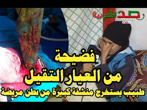 فضيحة من العيار التقيل 'طبيب يستخرج منشفة كبيرة من بطن مريضة بسيدي بنور'