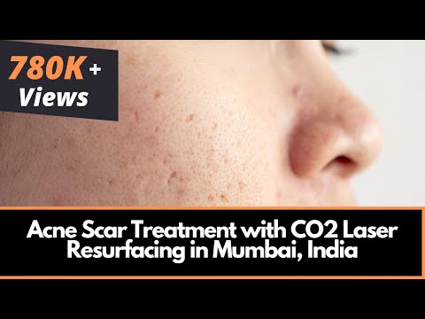 Acne Scar Treatment with CO2 Laser Resurfacing in Mumbai, India | Dr. Rinky Kapoor