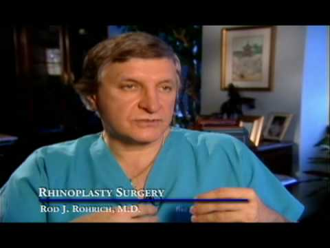 Rhinoplasty - What to Know and Ask Before Having Rhinoplasty