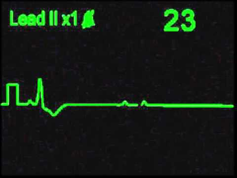 3rd Degree AV Block - ECG Simulator - Arrhythmia Simulator