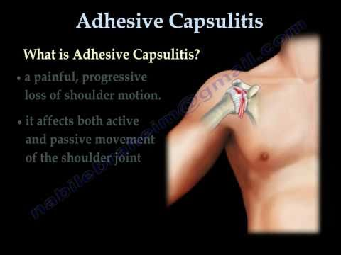 Adhesive Capsulitis ,frozen shoulder. - Everything You Need To Know - Dr. Nabil Ebraheim