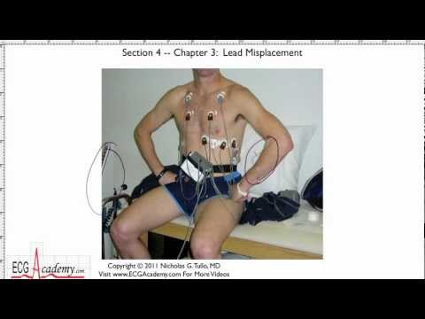 ECG Electrode Misplacement 4-3 - ECG / EKG Interpretation -- BASIC