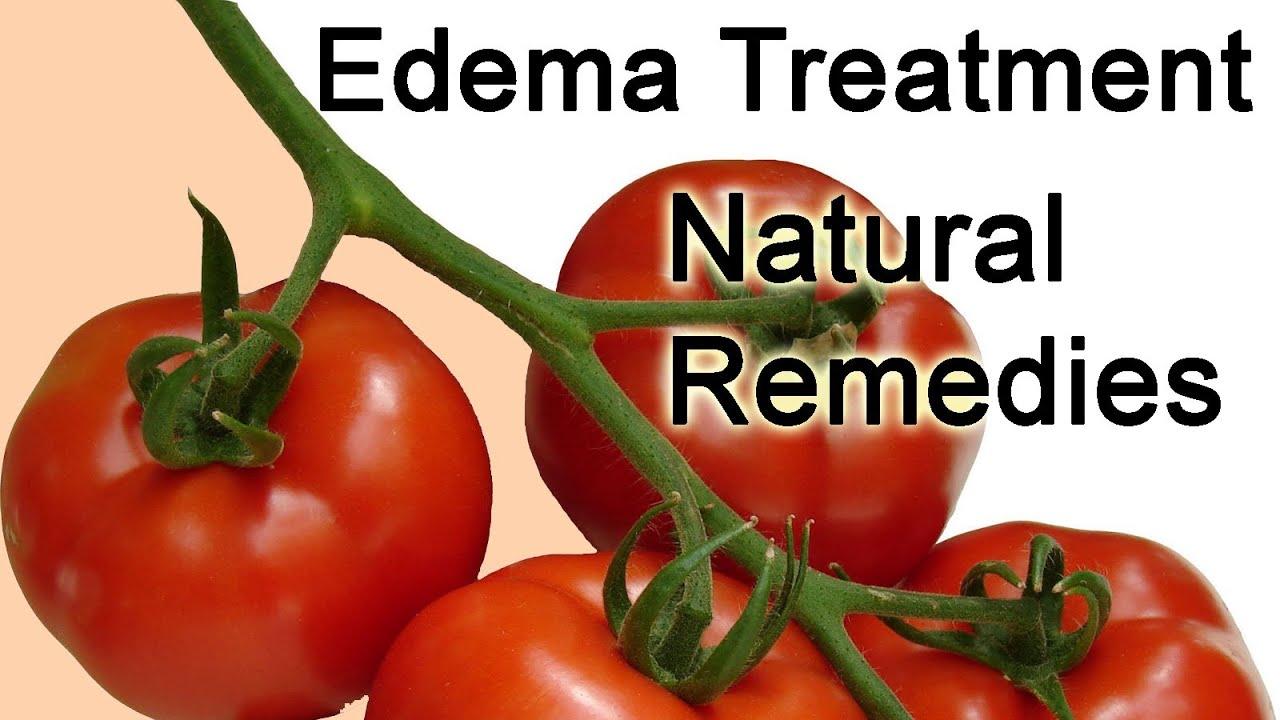 Herbal treatment for leg edema grading