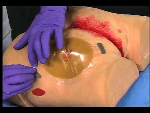 3m Tegaderm Hydrocolloid Dressing Application And