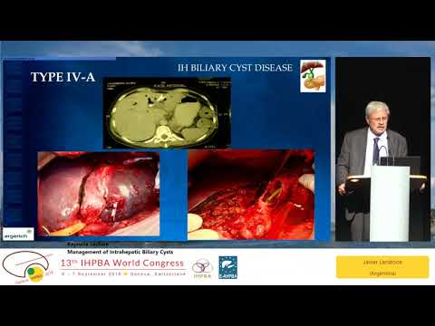 KN01 Management of Intrahepatic Biliary Cysts