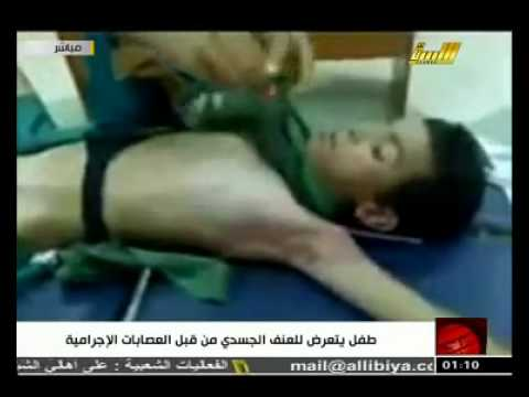 the boy which was tortured by rebels in misurata   youtube