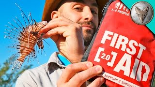 How to Cure a Lionfish Sting!